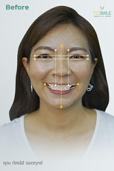 คุณทัศนีย์ ก่อนออกแบบรอยยิ้ม ออกแบบวีเนียร์ แก้ฟันเหลือง ปกปิดฟันแตกบิ่น