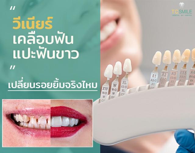 เคลือบฟัน แปะฟัน ทำฟันขาวด้วย วีเนียร์ เปลี่ยนรอยยิ้มให้สวยขึ้น