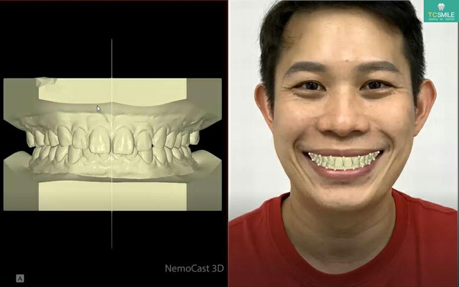 ขั้นตอนการการออกแบบวีเนียร์ สร้างรอยยิ้ม Nemo Smile วิธีที่ 1