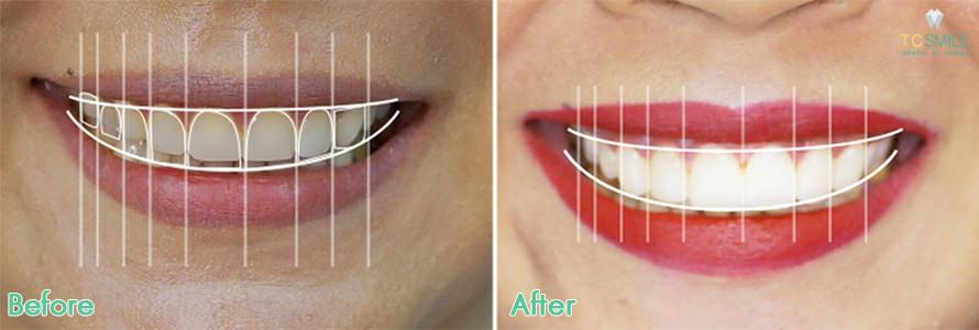 ภาพเปรียบเทียบก่อนหลังการออกแบบฟัน เพื่อทำการออกแบบรอยยิ้ม Nemo Smile