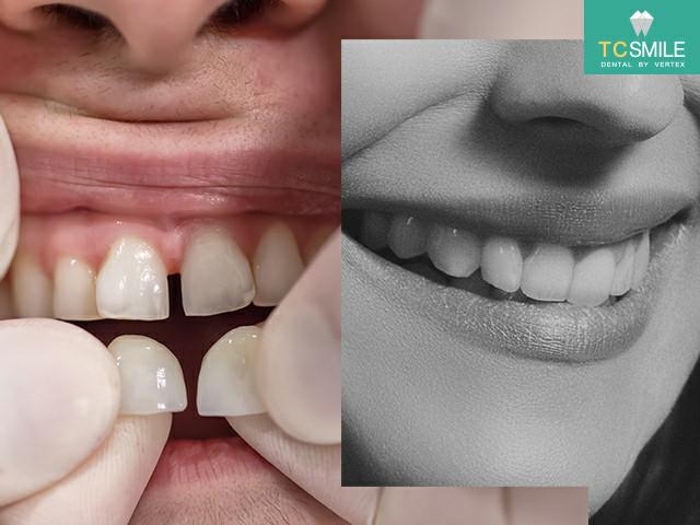 ทุกปัญหาเรื่องฟัน ทั้งฟันเหลือง ฟันแตก ฟันห่าง วีเนียร์จัดการได้