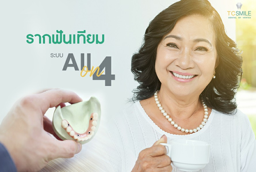 รากฟันเทียม All-On-4 ทดแทนฟันหายทั้งปาก ได้ฟันใหม่ไม่ต้องทำฟันปลอมอีกต่อไป