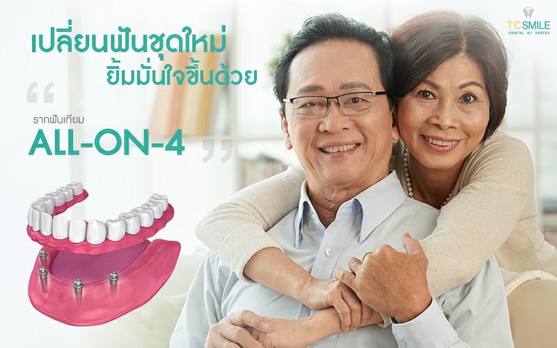 เปลี่ยนฟันใหม่ถาวร ทดแทนฟันหายทั้งปากด้วยรากฟันเทียม All-On-4