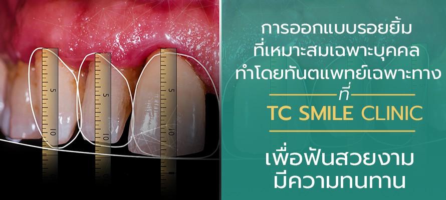 ออกแบบรอยยิ้ม Nemo Smile ที่ TC Smile