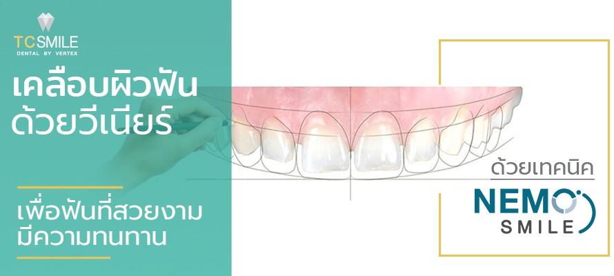 ออกแบบวีเนียร์ด้วยเทคนิค Nemo Smile แปะฟันขาวแก้ฟันเหลือง ฟันแตกบิ่น