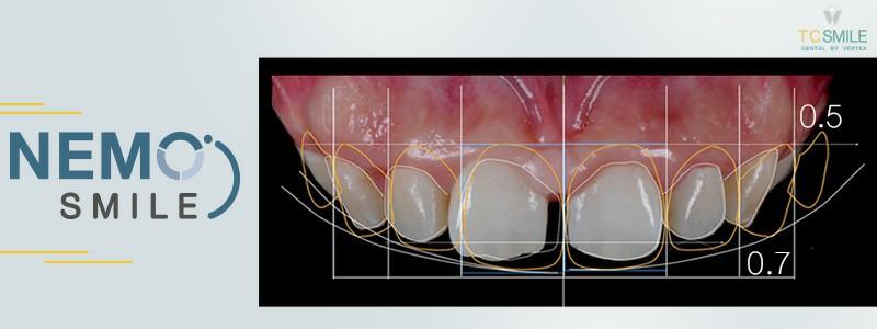 เคลือบฟันขาววีเนียร์ด้วยเทคนิค Nemo Smile